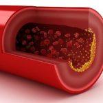 diferencia-entre-colesterol-y-trigliceridos